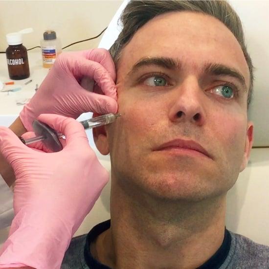 Tips For Men Getting Botox