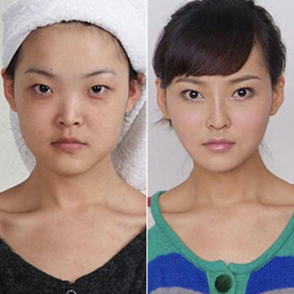 Cosmetic Surgery Before and After Photos From Korea