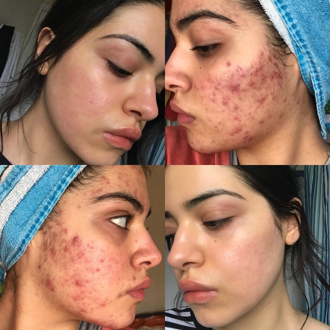 Acne Before And After Transformations Popsugar Beauty Australia