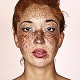 These Photos of Freckles Will Make You Love Your Spots Even More