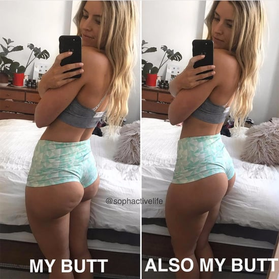 Cellulite on Butt is Normal
