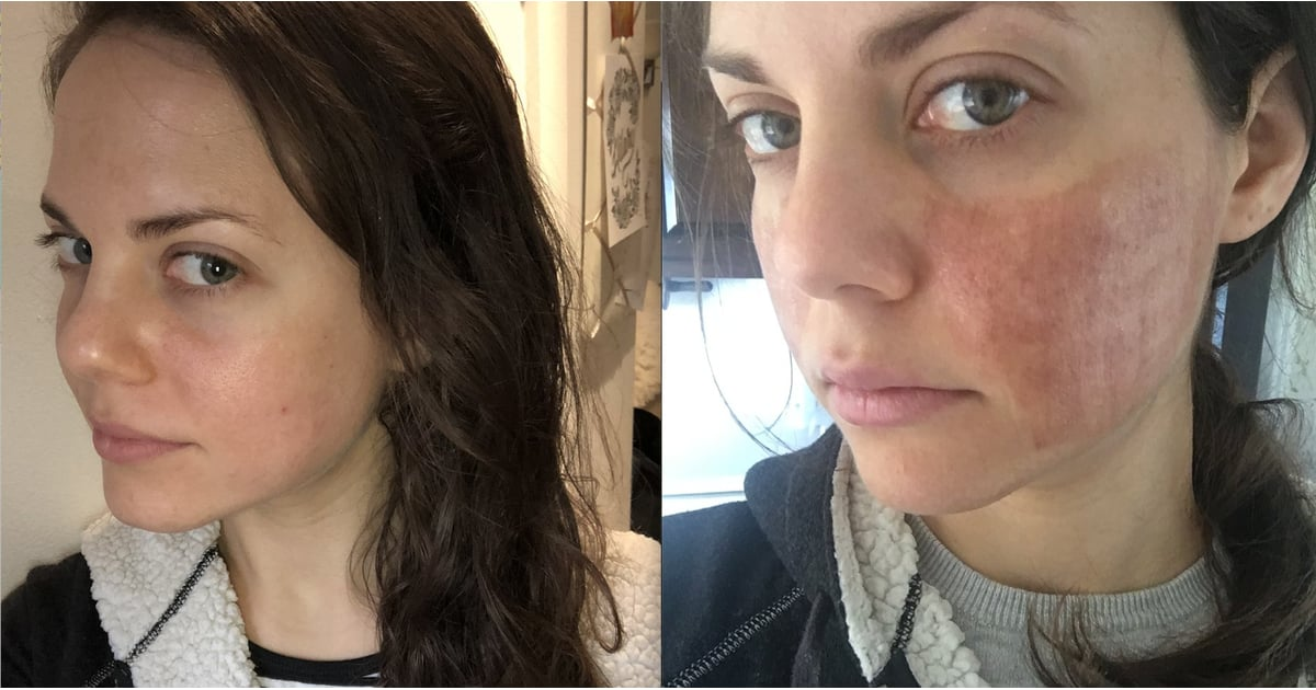 Should you try facial laser? One brave writer shares her experience.