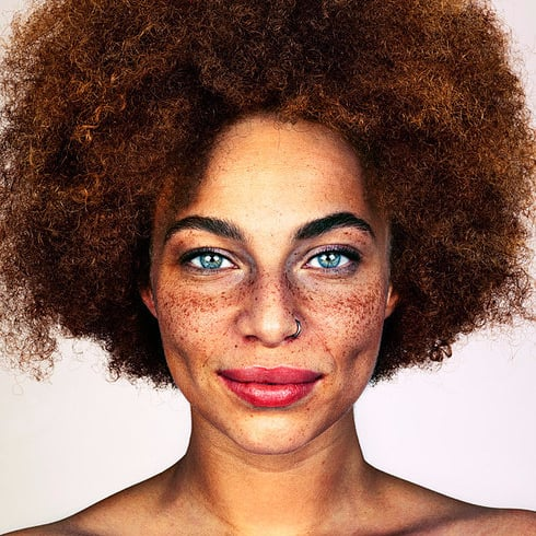 Photos of People With Freckles