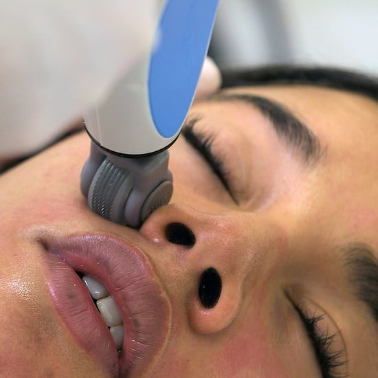 Hannah Bronfman Microneedling Facial | Video