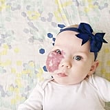 Baby With Capillary Hemangioma on Her Face