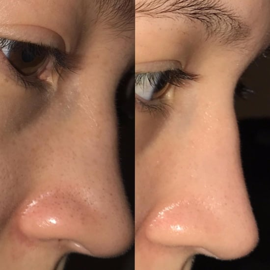 Redditor Reveals How to Get Rid of Blackheads