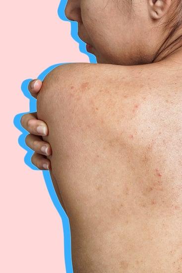 fish oil can remove acne scars