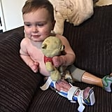 Boy With Amputations From Meningitis Takes First Steps