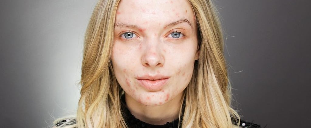 Beauty Influencer Quotes About Acne