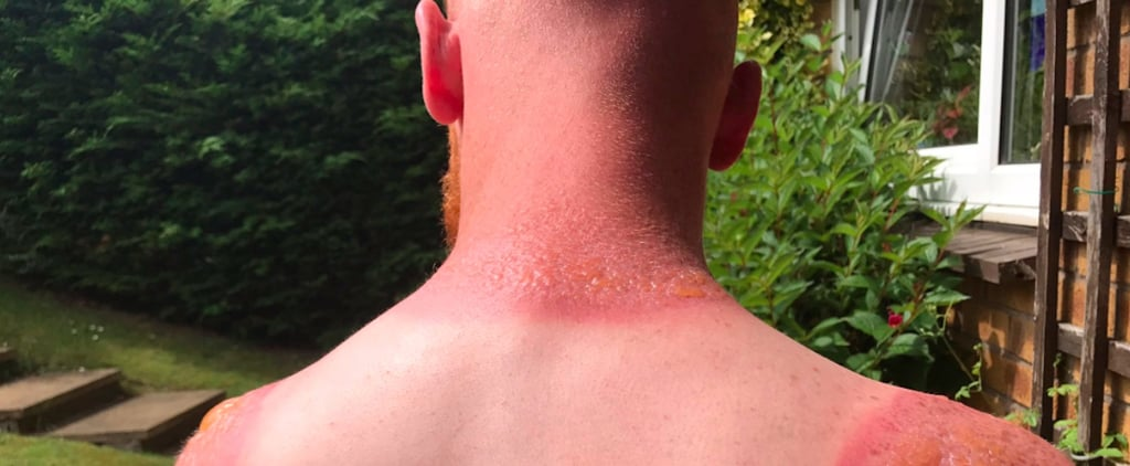 After Seeing This Man's Burn, You'll Never Skip Sunscreen Again