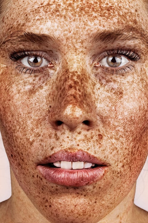 Photos Of People With Freckles Popsugar Beauty Photo 9