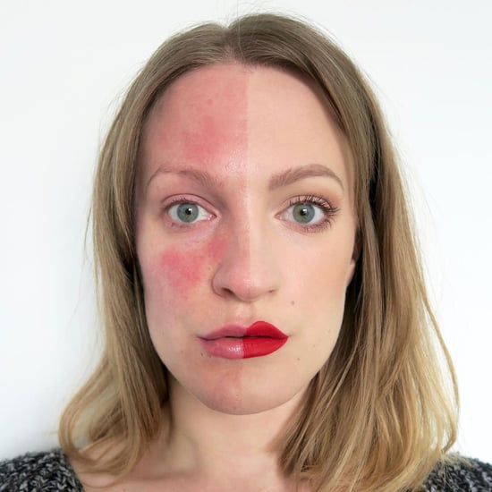 Women Embrace Skin Conditions on Instagram
