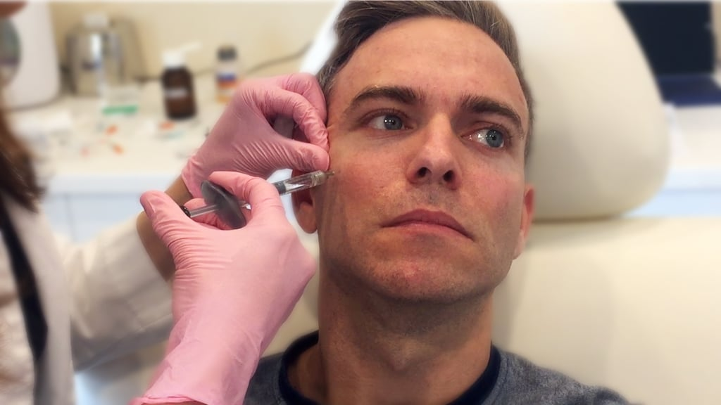Tips for men getting botox popsugar beauty image solutioingenieria Gallery