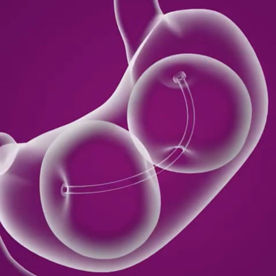 What Is a Gastric Balloon?