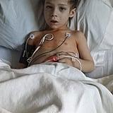 This is neuroblastoma.