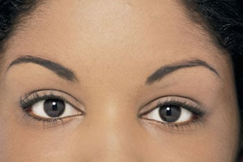Eyebrow Transplants Offer Solutions For Overplucking