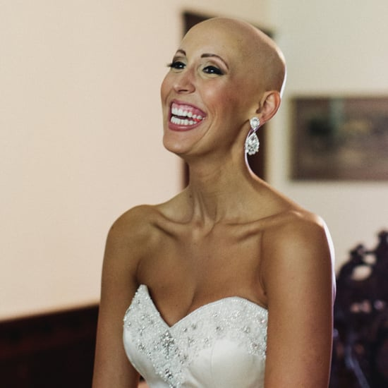 Bald Bride's Wedding Photos (Video)