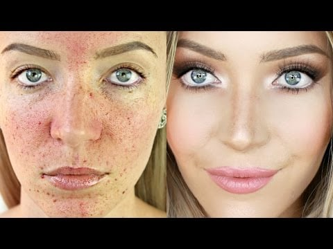 Stephanie Lange's Acne Scarring and Pigmentation Foundation Routine