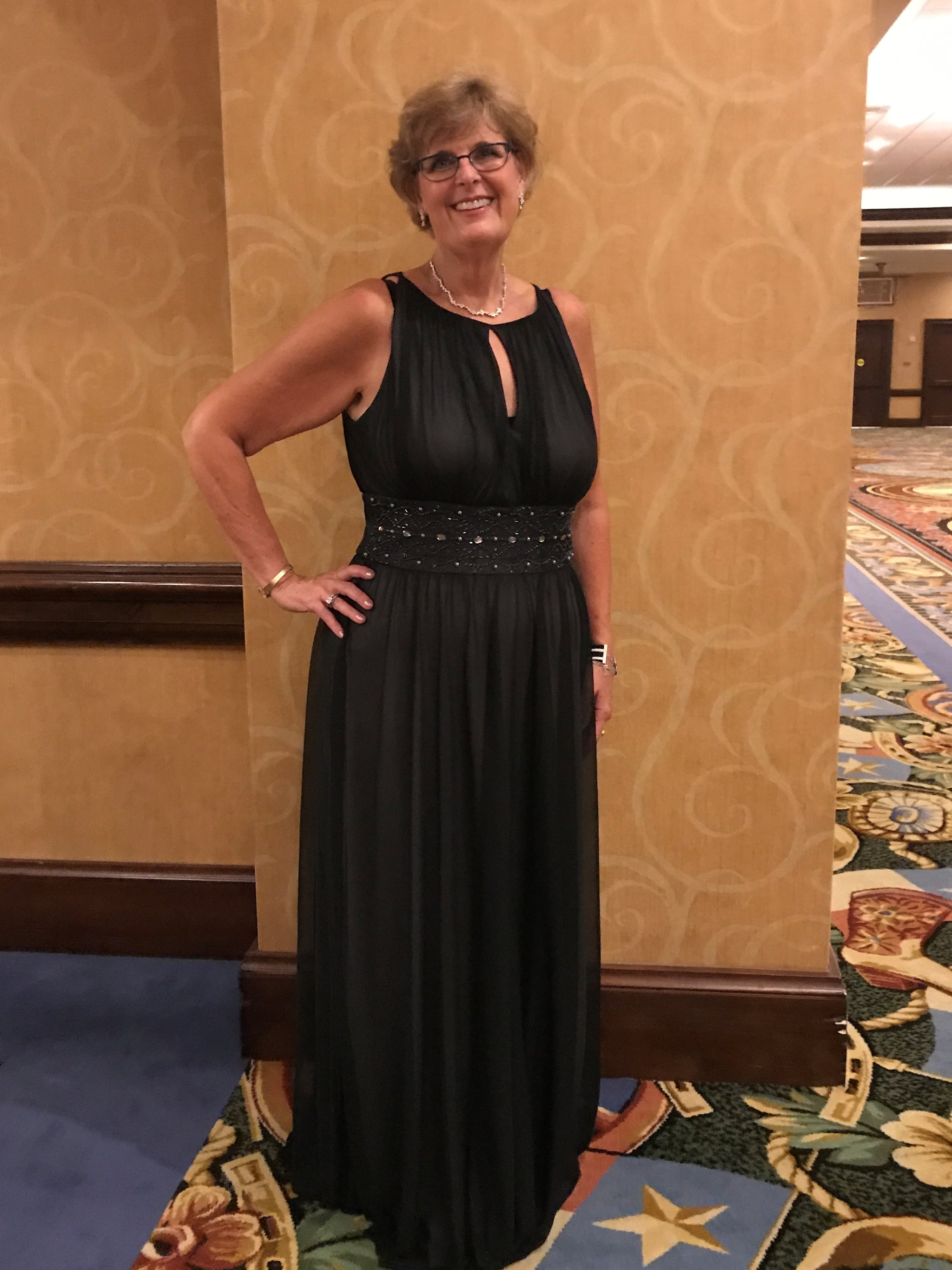 before and after weight loss  susan zartman