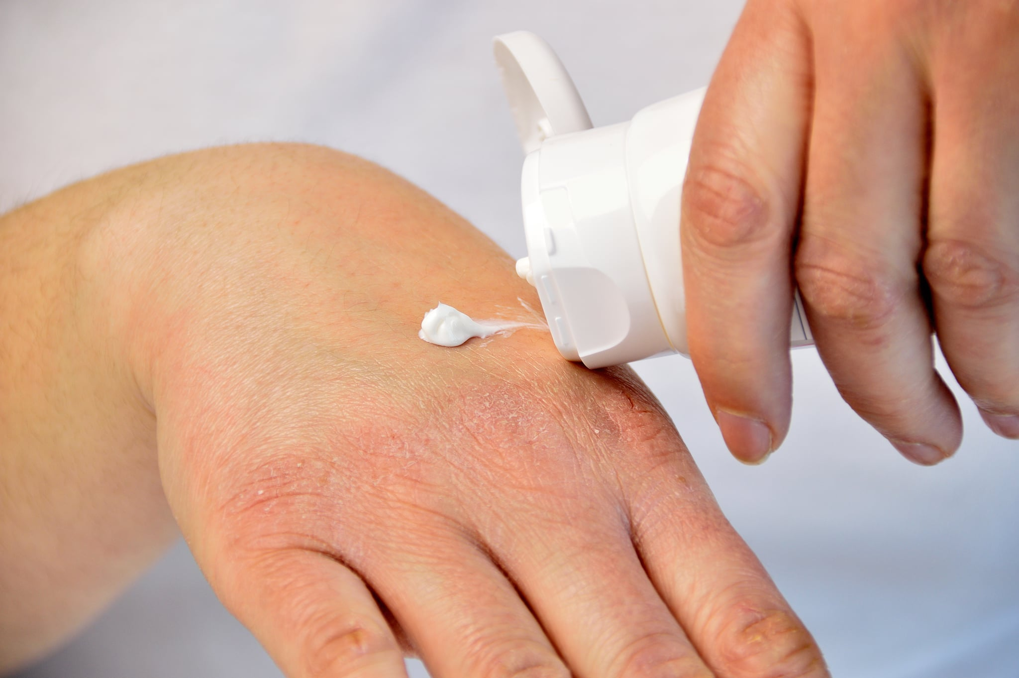 Cropped image of a young woman putting moisturizer onto her hand with very dry skin and deep cracks with cream.