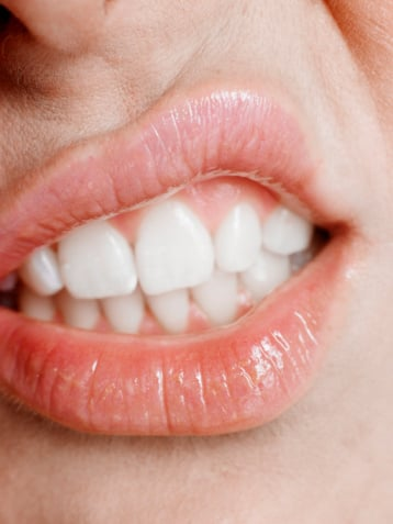 Teeth Whitening. Would You? White Teeth Beauty Poll from BellaSugar UK