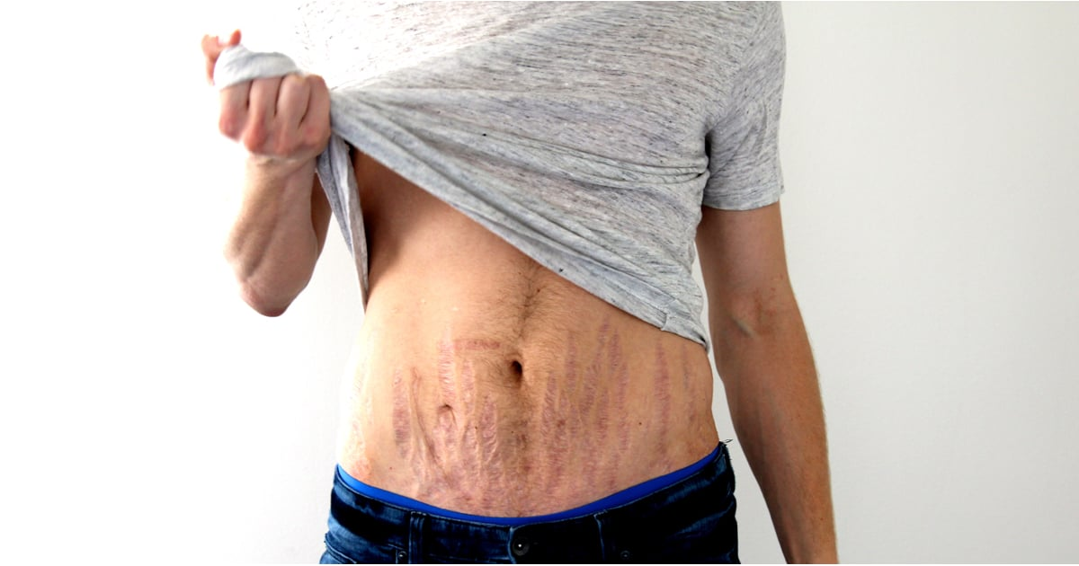 How To Love Your Stretch Marks Popsugar Beauty