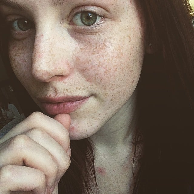 Pictures Of Girls With Freckles Popsugar Beauty Australia