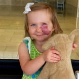 When This Child Noticed Kids Staring at Her Birthmark, She Owned it in an Incredible Way