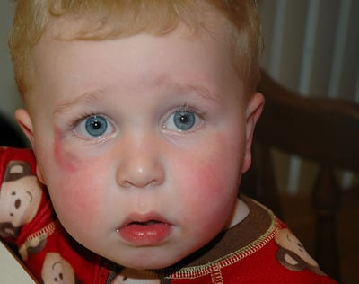 What You Need to Know About Toddler Falls, Bumps, and Bruises