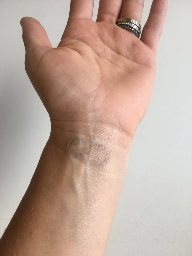 9ecefba7b742c Thinking About Getting Your Tattoo Removed?   What It's Like to Have ...