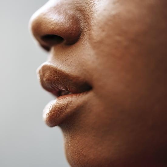 أسباب مفاجئة لتشقّق الشفتين وطرق علاجها