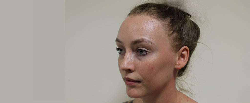 Why 1 Ballerina Is Bravely Sharing the Story Behind Her Hair Loss