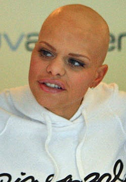 Jade Goody, Husband Jack Tweed And Her Sons Bobby and Freddy Prepare For Her Final Days
