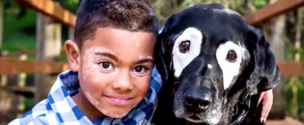 Boy With Vitiligo Meets Dog With Same Condition
