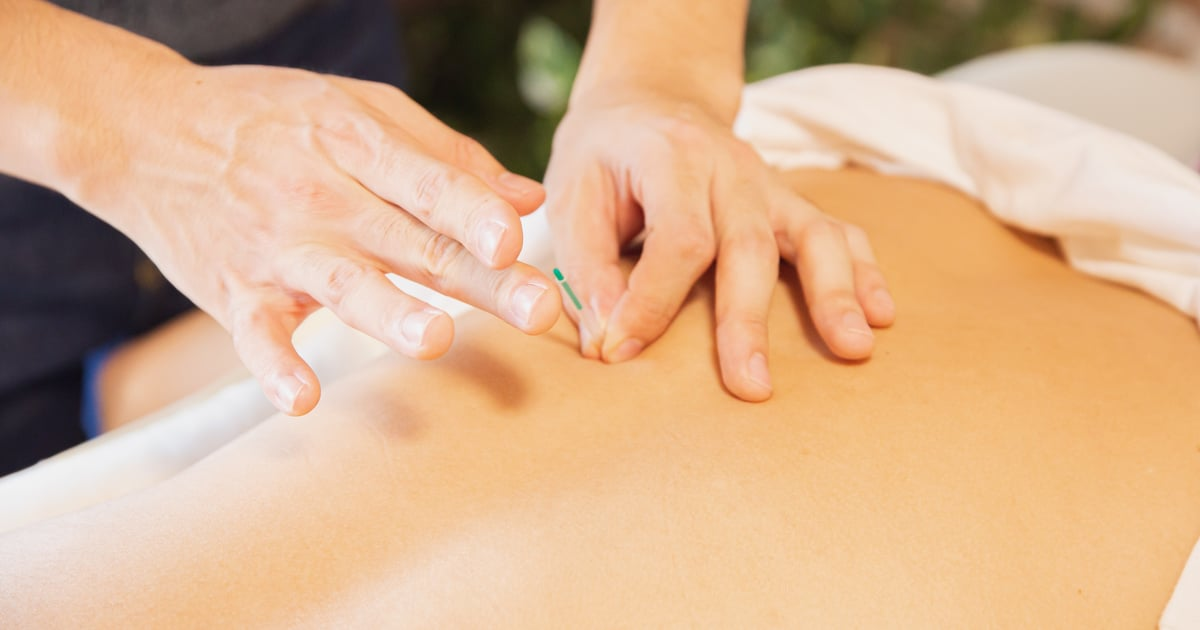 Acupuncture Could Give Your Libido an Unexpected, but Effective, Boost — Here's How