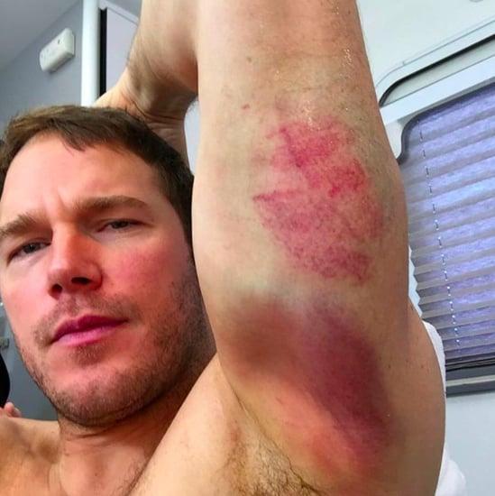 Chris Pratt Instagram Photos of Bruises December 2016
