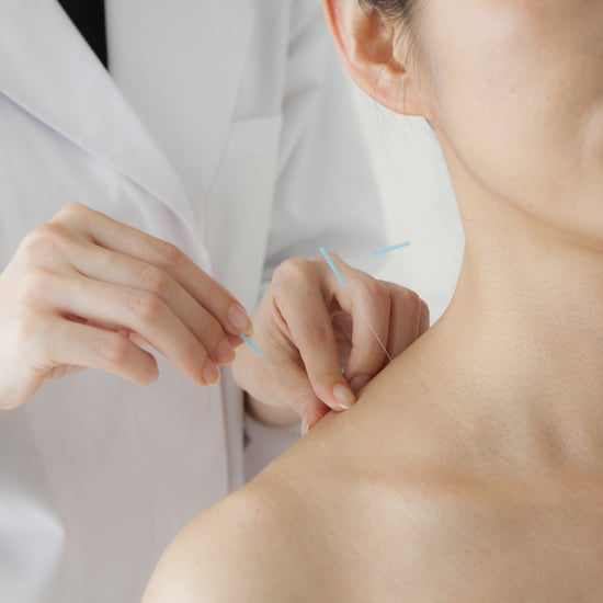Acupuncture Side Effects to Know About Before Your Treatment