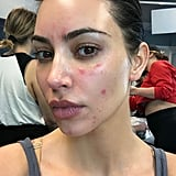 Kim Kardashian Talks About Her Psoriasis With Photos