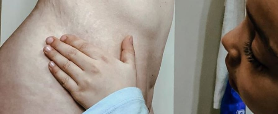Should I Tell My Daughter About My C-Section Scars?