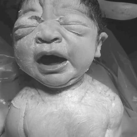 Baby Born Via Gentle C-Section