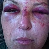 Day Care Worker Assaulted