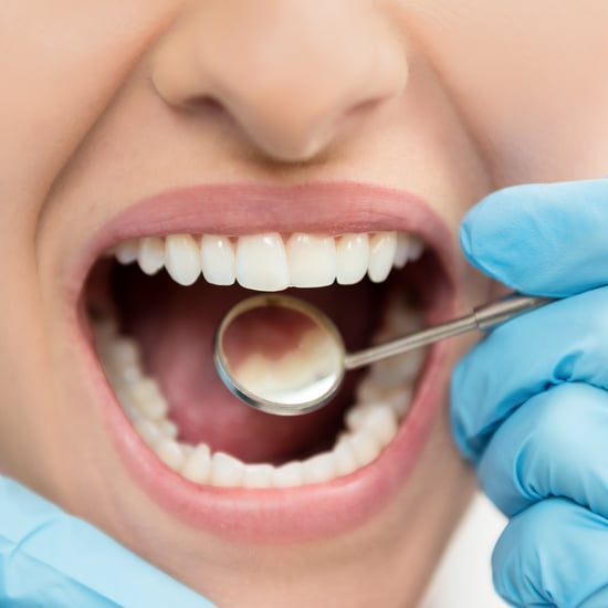 What Is Silver Diamine Fluoride Cavity Treatment?