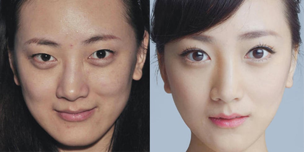 Cosmetic Surgery Before and After Photos From Korea ...