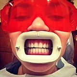 Chrissy Teigen got her teeth whitened. Source: Instagram user chrissy_teigen