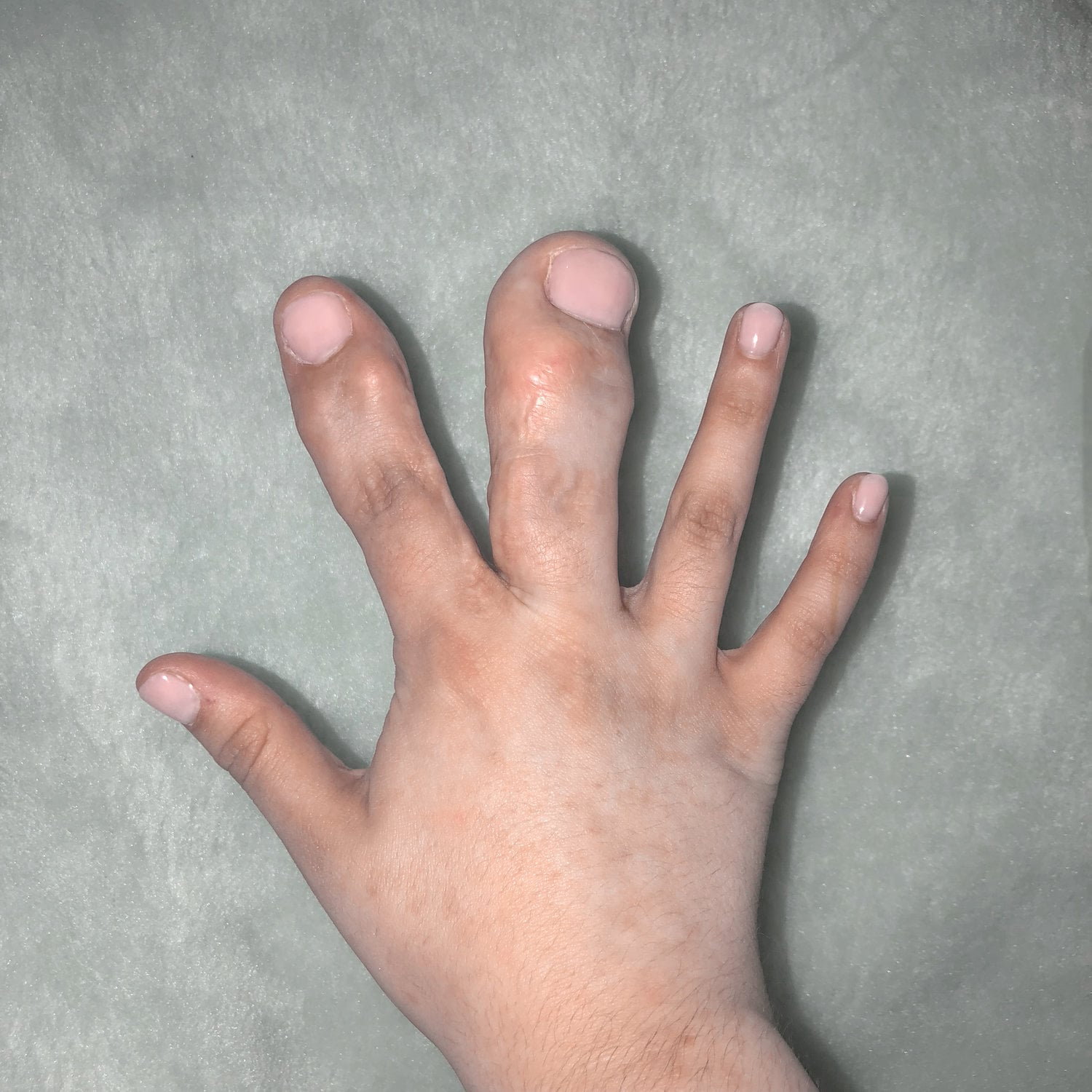 These are my Fingers