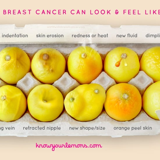 What Breast Cancer Can Look and Feel Like Photo