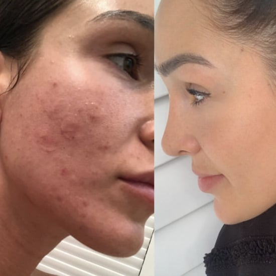 Kayla Itsines Acne Instagram Story
