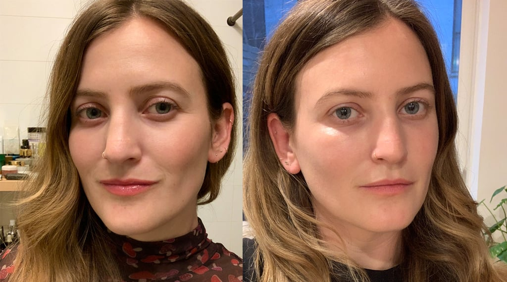 What to Know Before Getting Undereye Fillers