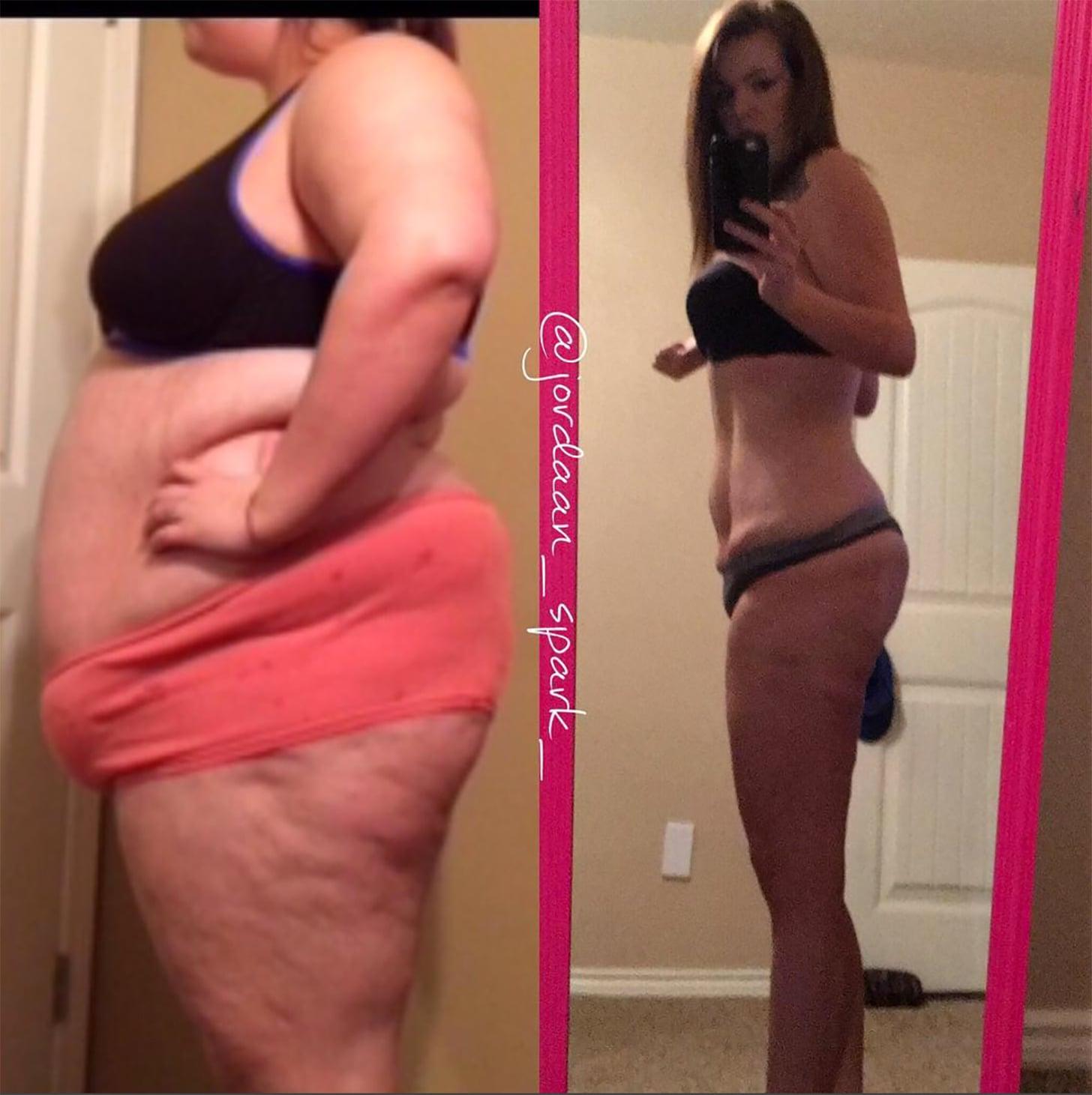 dolan preffisio weight loss