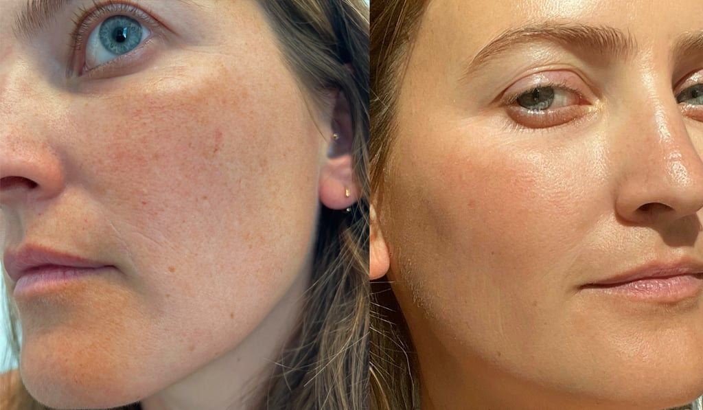 I Tried a Laser Treatment For Broken Capillaries on My Face